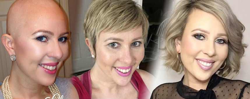 From Bald To Beautiful Tresses The Cancer Thriver S